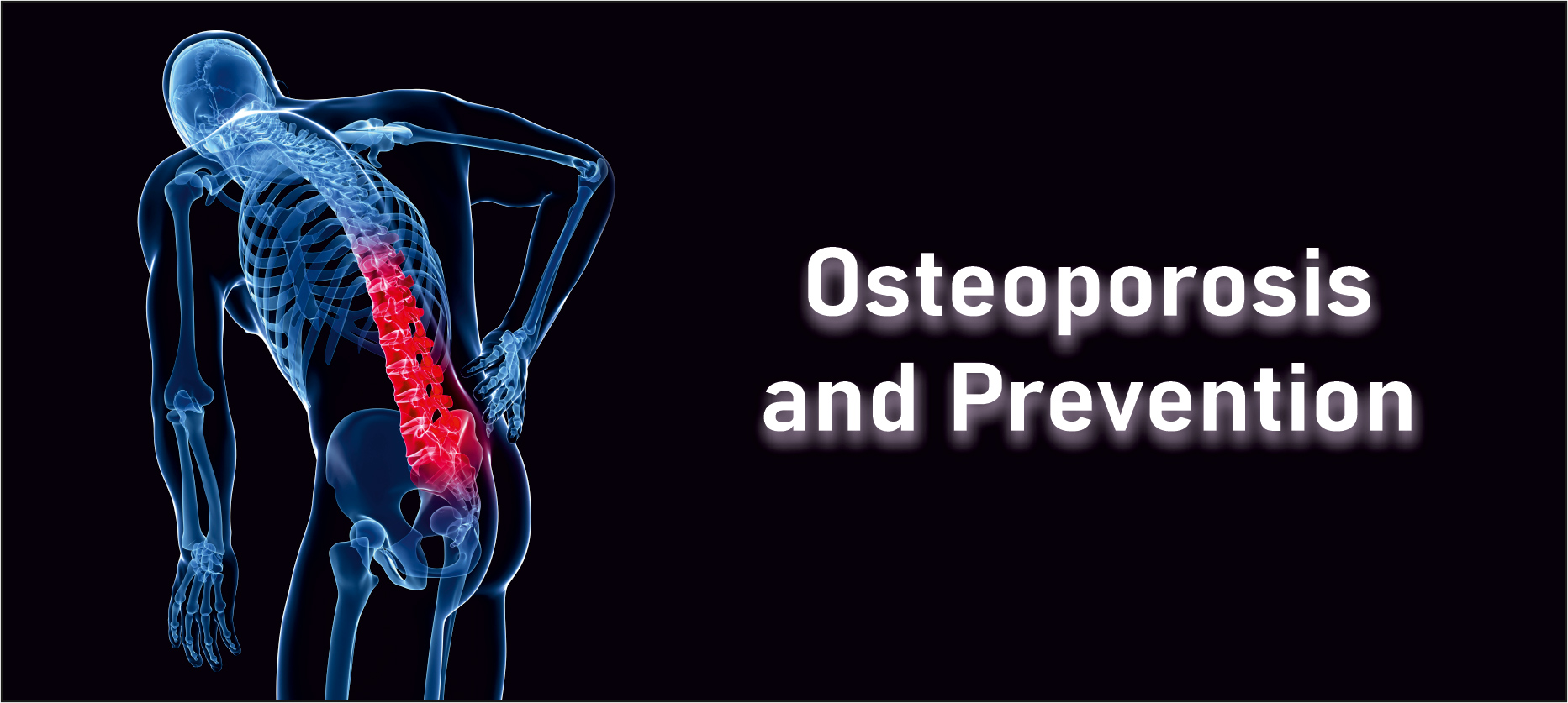 Osteoporosis and its Prevention