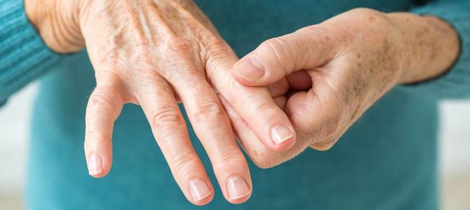 Rheumatoid Arthritis – An Autoimmune Disorder?