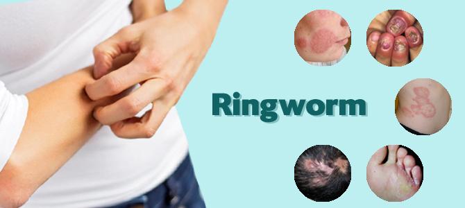 Ring Worm (Tinea)