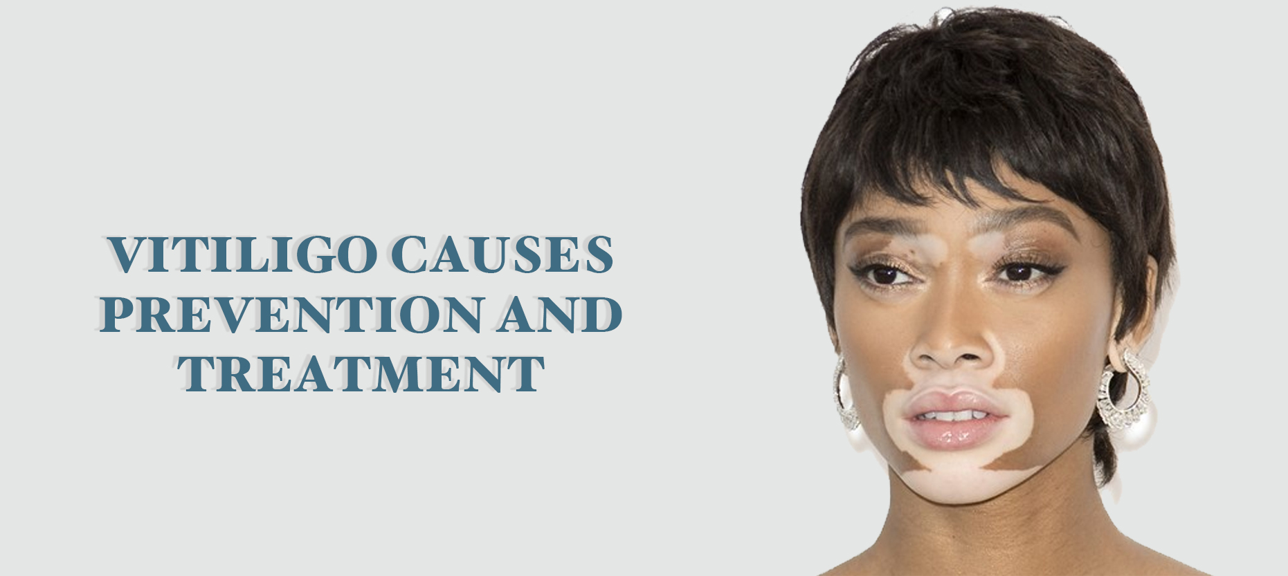 Vitiligo: Causes, Prevention & Treatment
