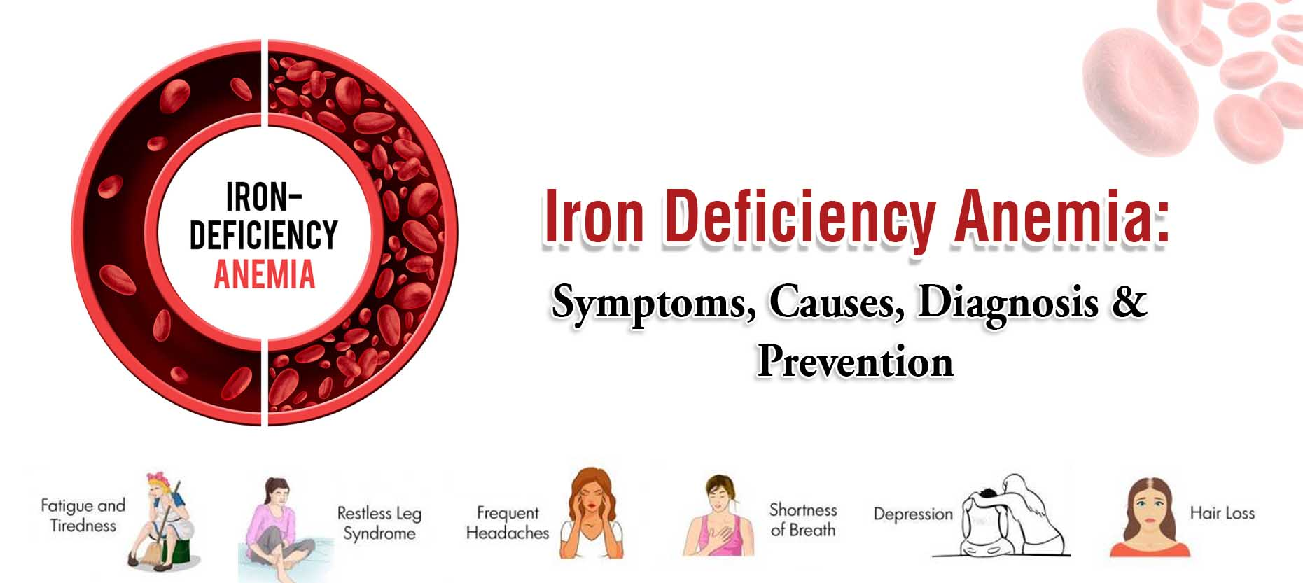 Iron Deficiency Anemia: Symptoms, Causes, Diagnosis & Prevention