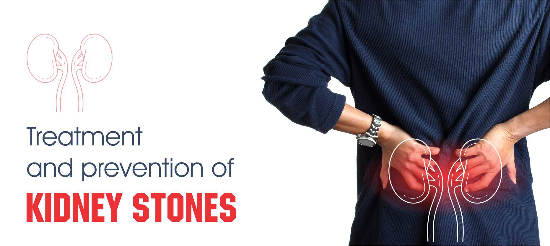 Natural Home Remedies to Prevent and Treat Kidney Stones