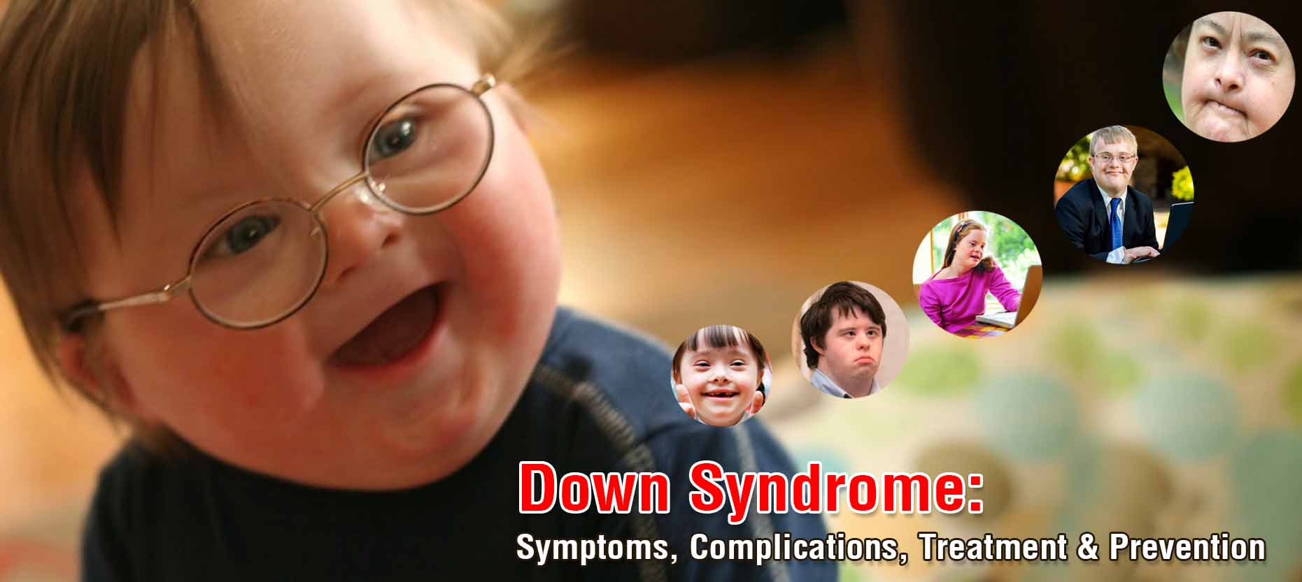 Down Syndrome: Symptoms, Complications, Treatment & Prevention