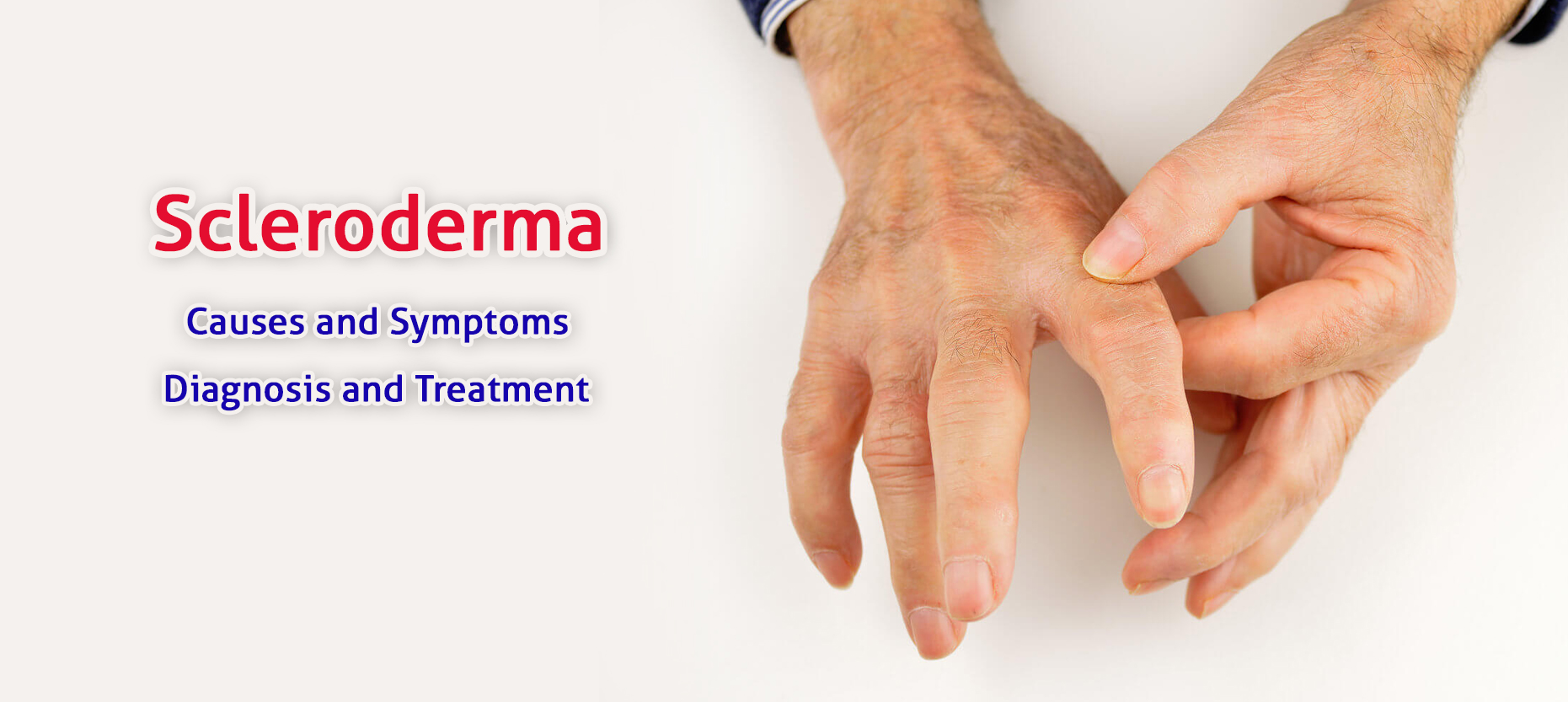 Scleroderma: Causes, Symptoms, Diagnosis and Treatment