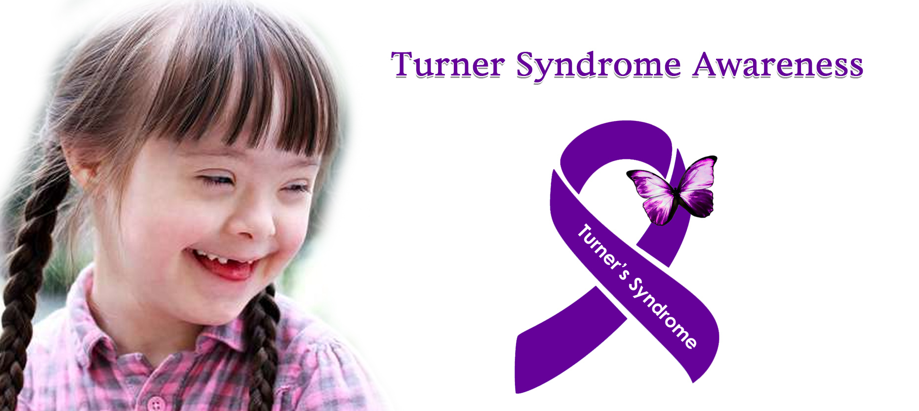 Turner Syndrome: Signs, Symptoms, Treatment