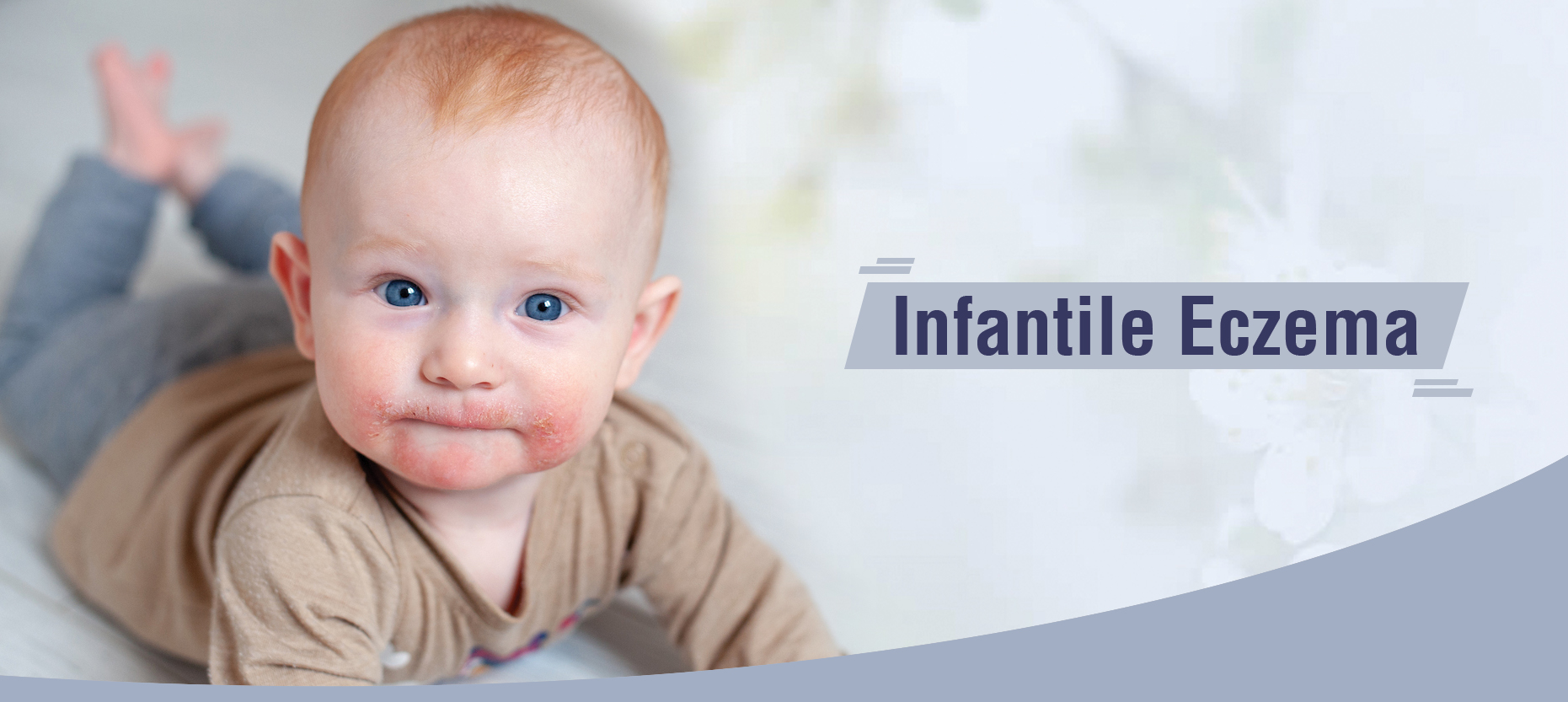 Infantile Eczema: Common Causes and its Treatment