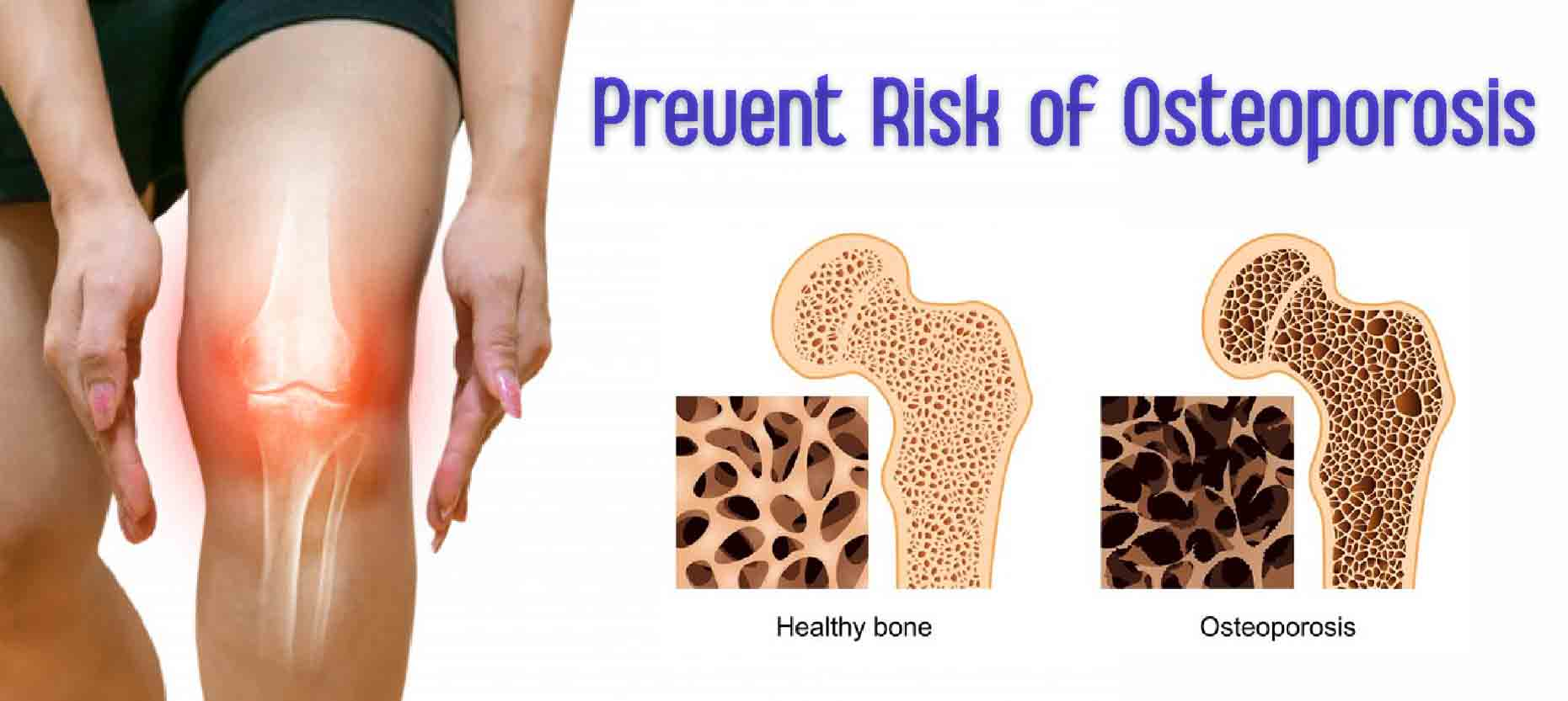 Best Ways to Prevent the Risk of Osteoporosis