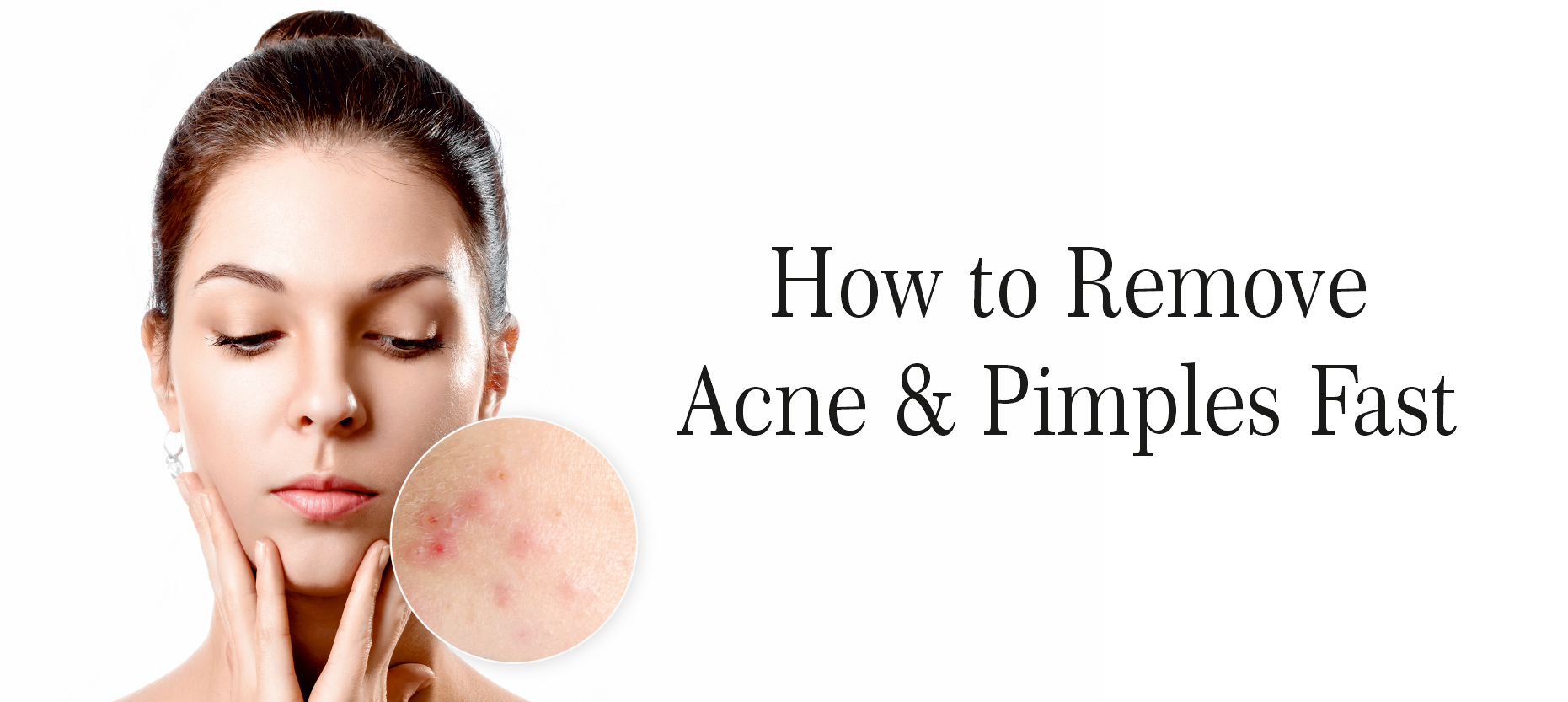 How to Remove Acne & Pimples Fast